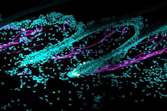 本图展示了黑色素干细胞(黄色)周围的交感神经(品红色)。| 来源:Bing Zhang和许雅捷